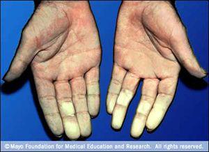 Koude handen en voeten vermijden